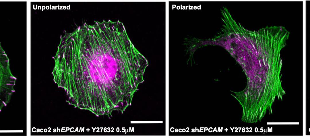 EpCAM promotes endosomal modulation of the cortical RhoA zone for epithelial organization